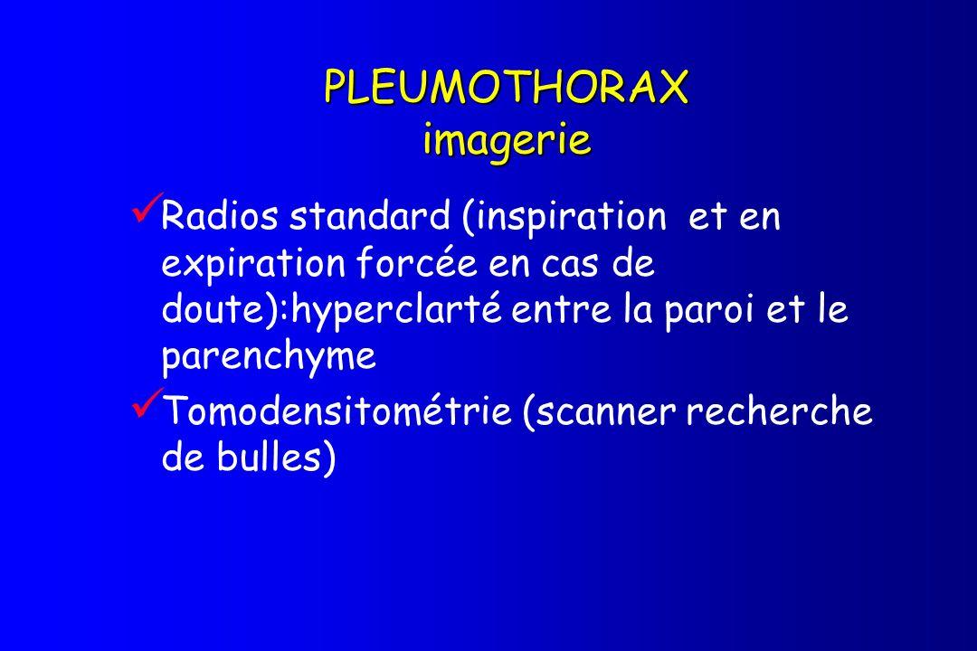 PLEUMOTHORAX imagerie Radios standard (inspiration et en expiration forcée en cas de doute):hyperclarté entre la paroi et le parenchyme Tomodensitomét
