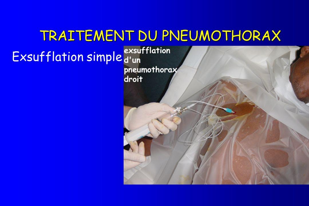 TRAITEMENT DU PNEUMOTHORAX Exsufflation simple