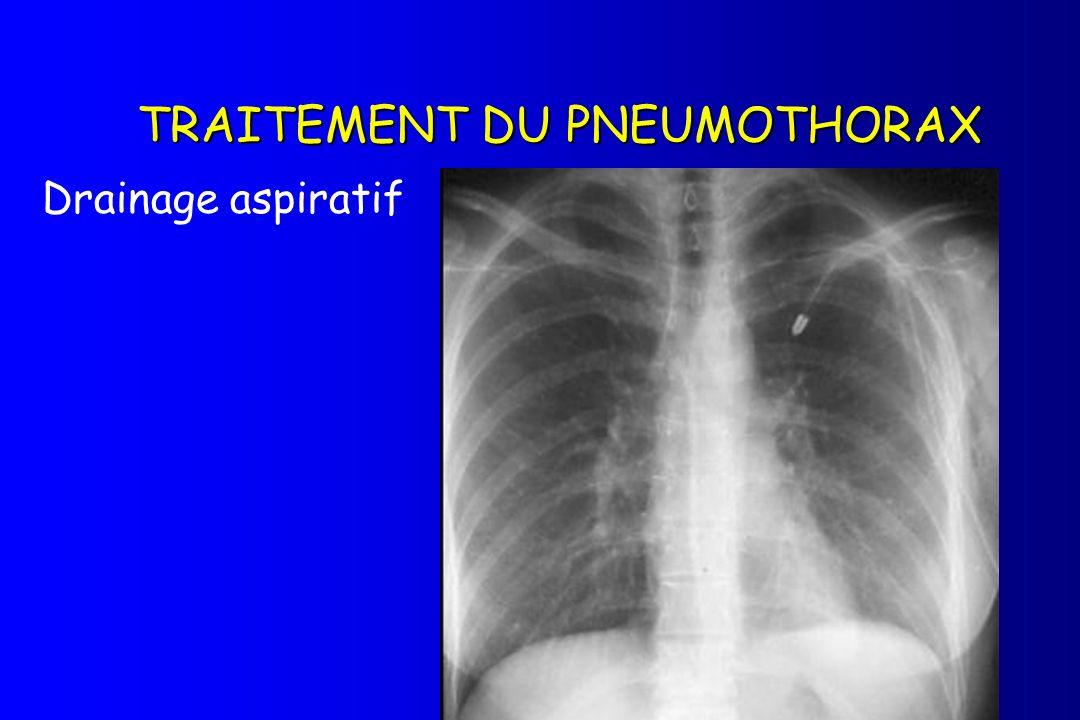 TRAITEMENT DU PNEUMOTHORAX Drainage aspiratif