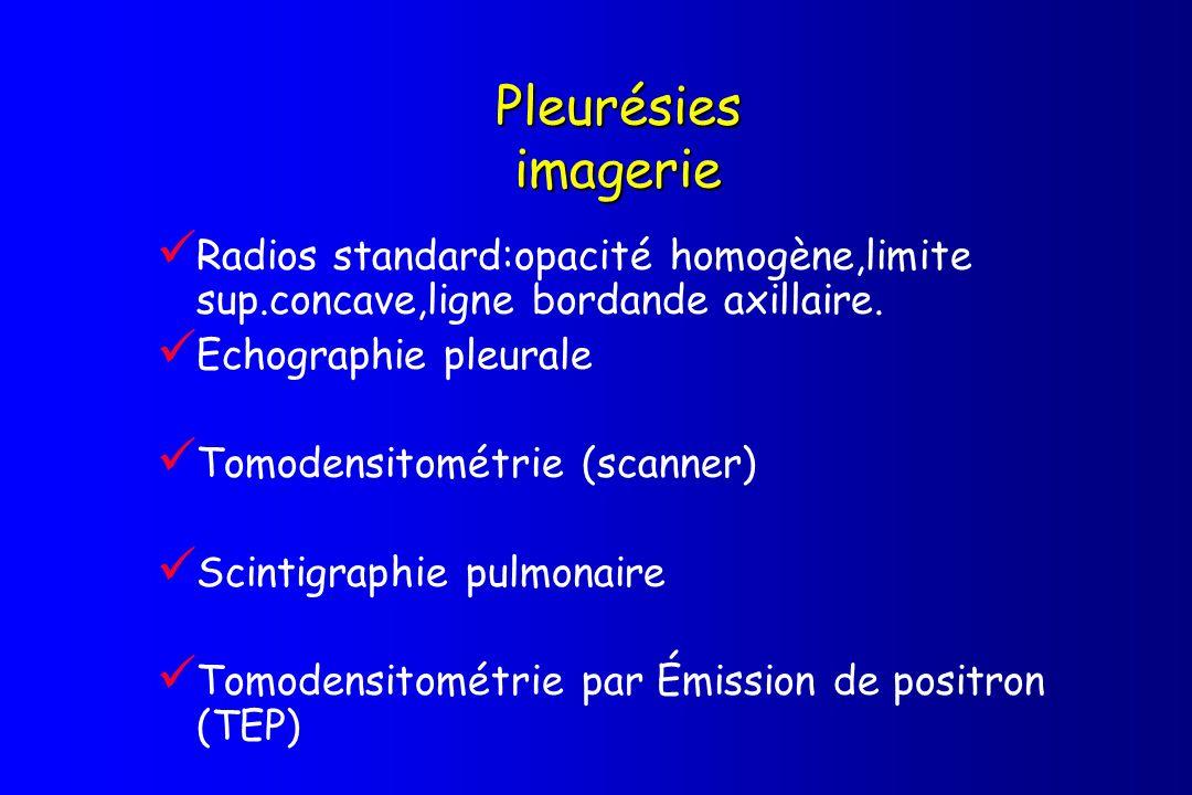 Pleurésies imagerie Radios standard:opacité homogène,limite sup.concave,ligne bordande axillaire. Echographie pleurale Tomodensitométrie (scanner) Sci