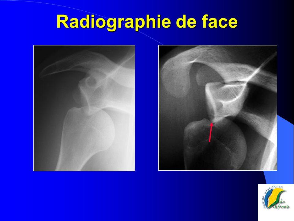 Radiographie de face
