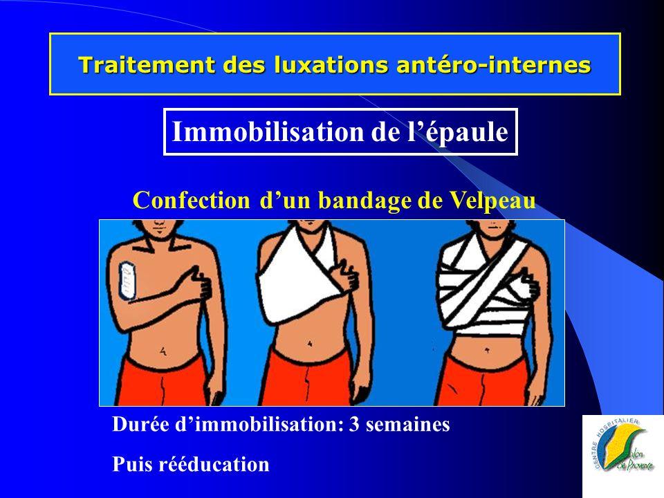 Durée dimmobilisation: 3 semaines Puis rééducation Traitement des luxations antéro-internes Confection dun bandage de Velpeau Immobilisation de lépaul