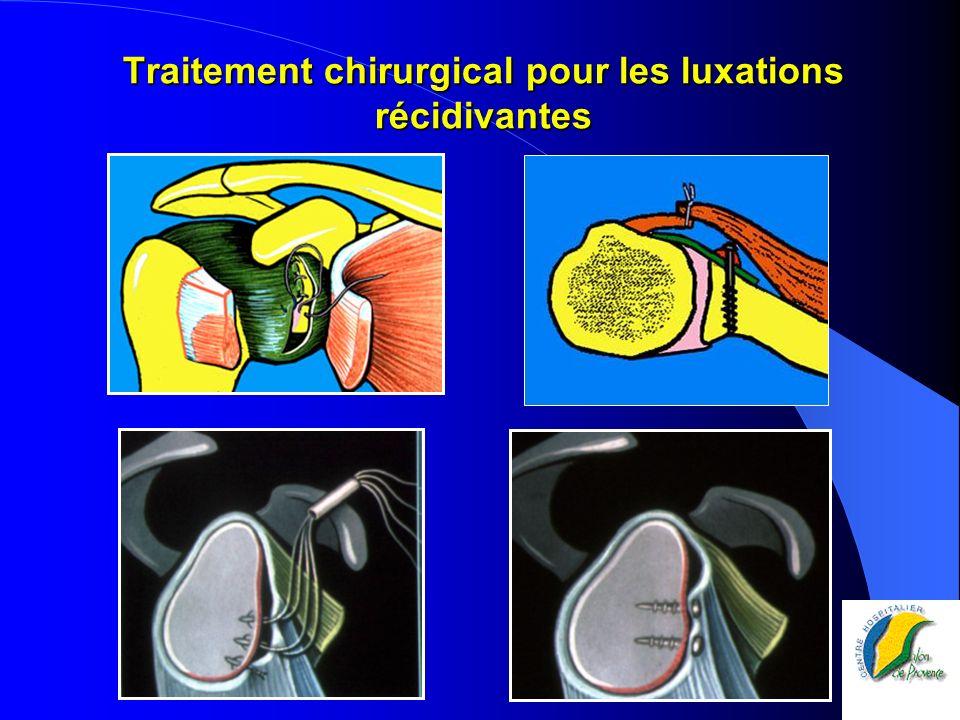 Traitement chirurgical pour les luxations récidivantes