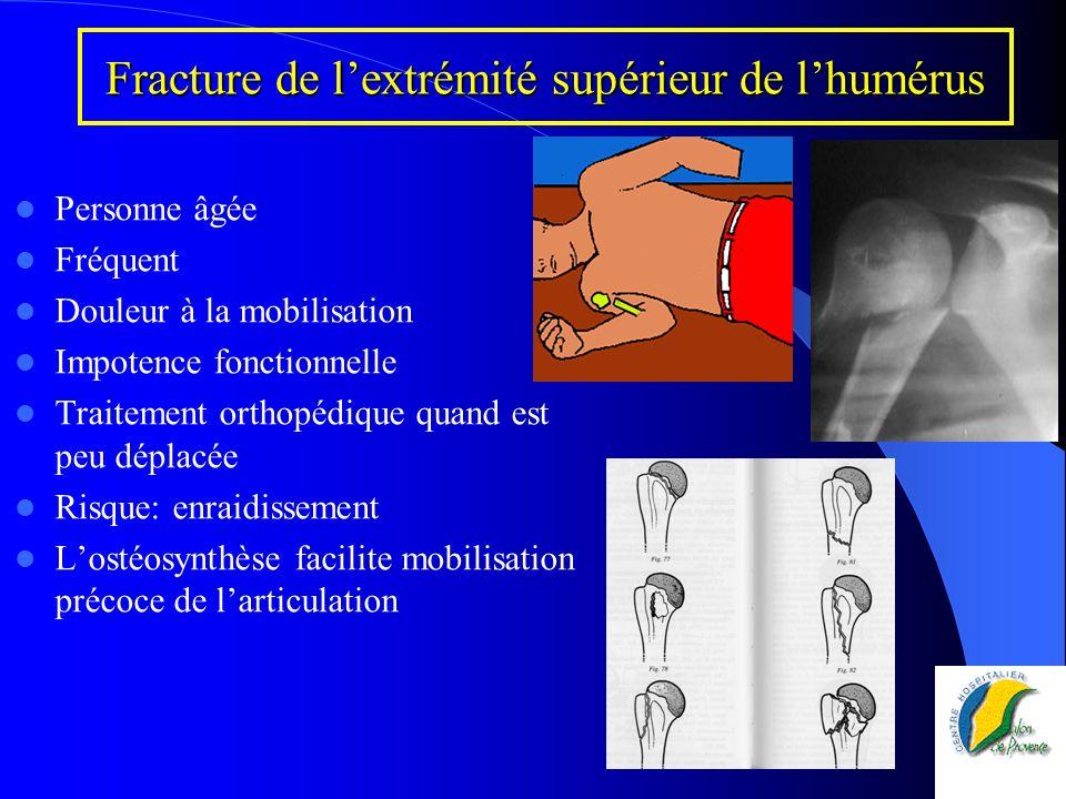 Fracture de lextrémité supérieur de lhumérus Personne âgée Fréquent Douleur à la mobilisation Impotence fonctionnelle Traitement orthopédique quand es