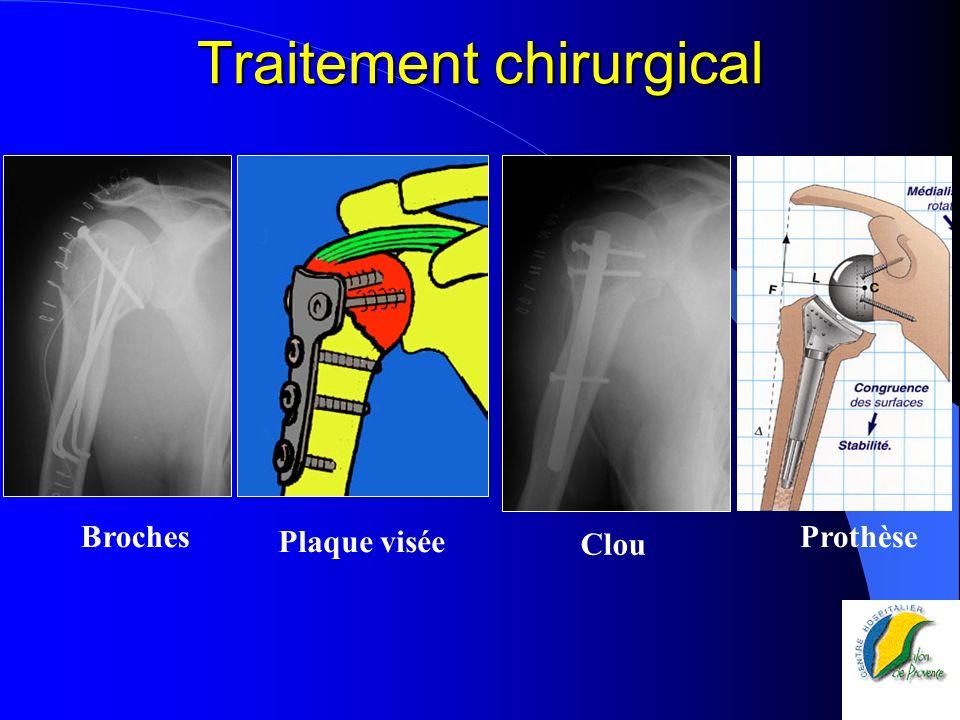 Traitement chirurgical Clou Plaque visée BrochesProthèse
