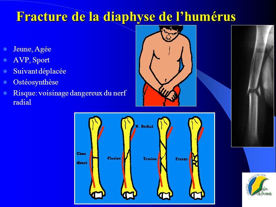 Fracture de la diaphyse de lhumérus Jeune, Agée AVP, Sport Suivant déplacée Ostéosynthèse Risque: voisinage dangereux du nerf radial