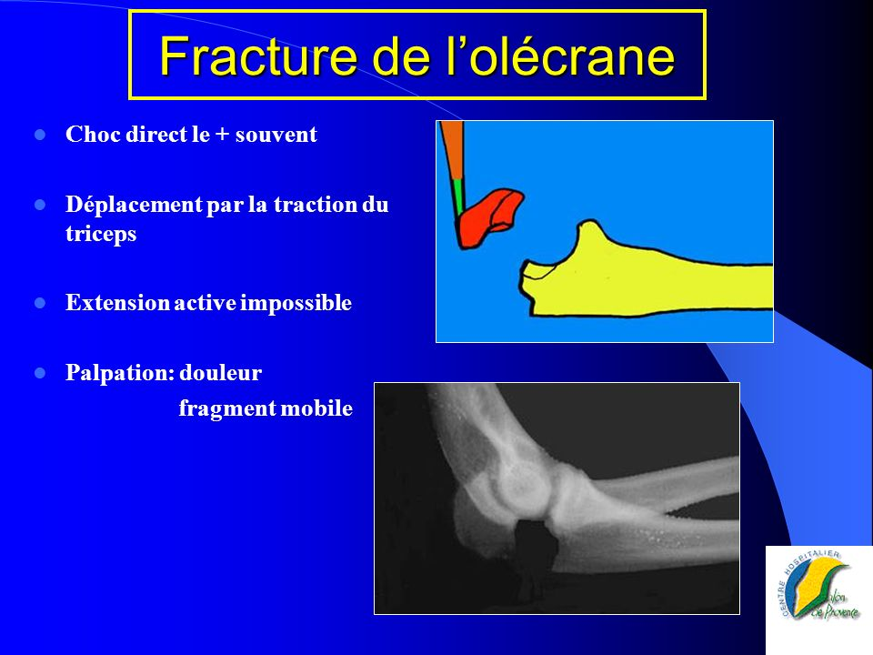 Choc direct le + souvent Déplacement par la traction du triceps Extension active impossible Palpation: douleur fragment mobile Fracture de lolécrane