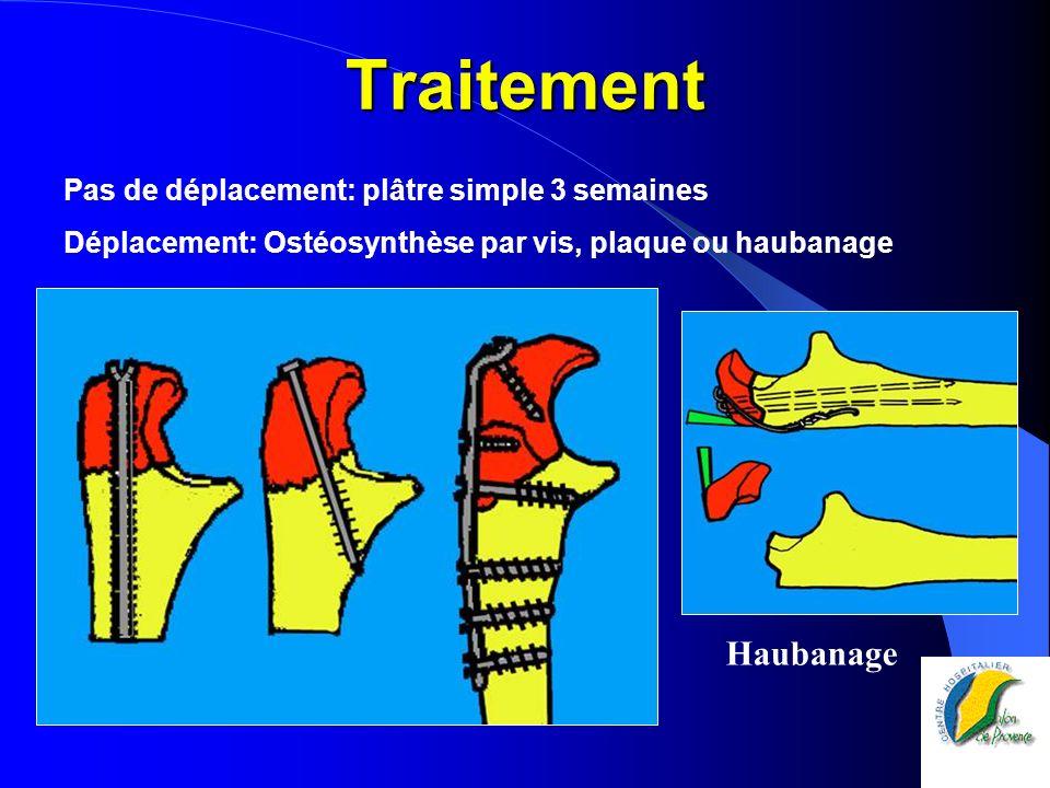 Traitement Pas de déplacement: plâtre simple 3 semaines Déplacement: Ostéosynthèse par vis, plaque ou haubanage Haubanage