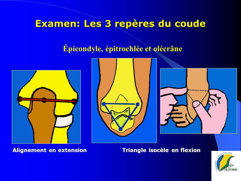 Examen: Les 3 repères du coude Alignement en extension Triangle isocèle en flexion Épicondyle, épitrochlée et olécrâne