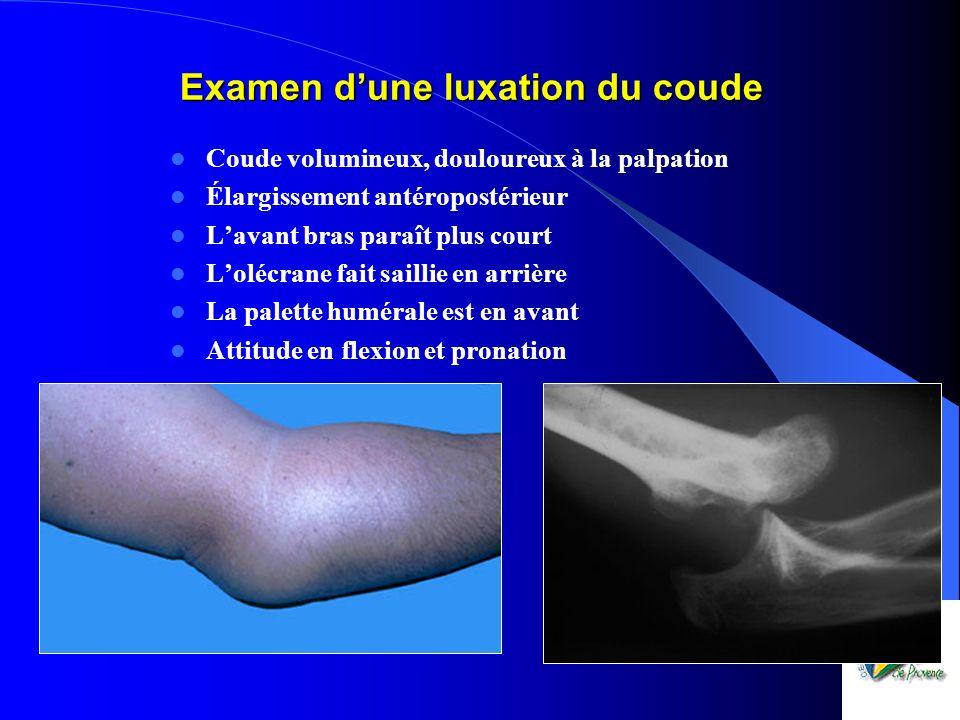 Examen dune luxation du coude Coude volumineux, douloureux à la palpation Élargissement antéropostérieur Lavant bras paraît plus court Lolécrane fait