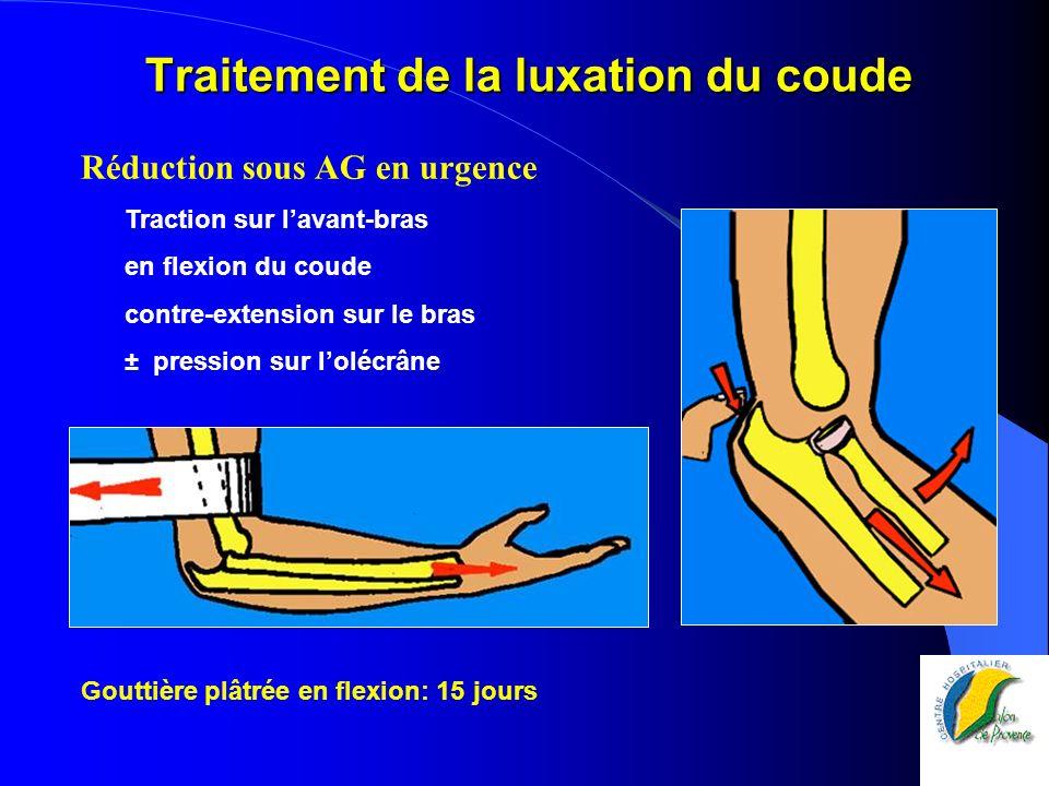 Traitement de la luxation du coude Réduction sous AG en urgence Traction sur lavant-bras en flexion du coude contre-extension sur le bras ± pression s