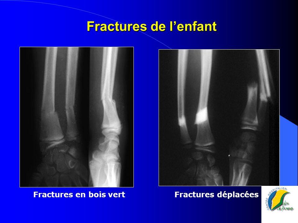 Fractures de lenfant Fractures en bois vert Fractures déplacées