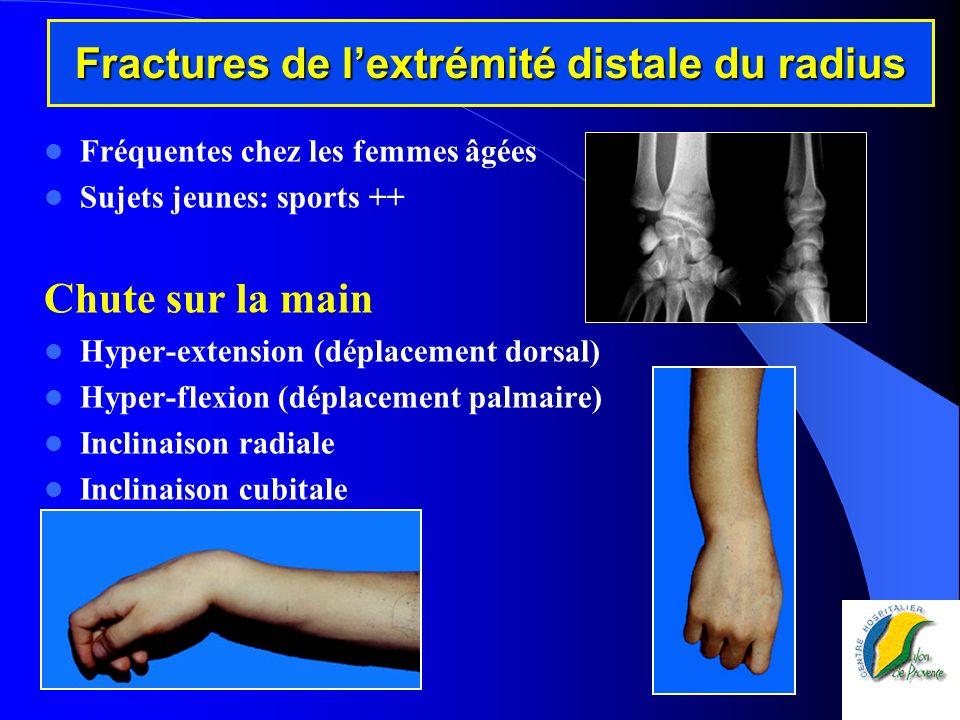 Fractures de lextrémité distale du radius Fréquentes chez les femmes âgées Sujets jeunes: sports ++ Chute sur la main Hyper-extension (déplacement dor
