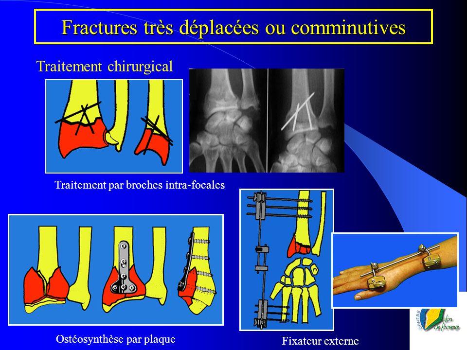 Fractures très déplacées ou comminutives Traitement chirurgical Fixateur externe Ostéosynthèse par plaque Traitement par broches intra-focales