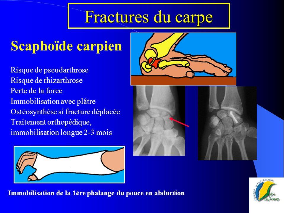 Fractures du carpe Scaphoïde carpien Risque de pseudarthrose Risque de rhizarthrose Perte de la force Immobilisation avec plâtre Ostéosynthèse si frac