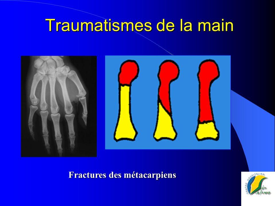Traumatismes de la main Fractures des métacarpiens