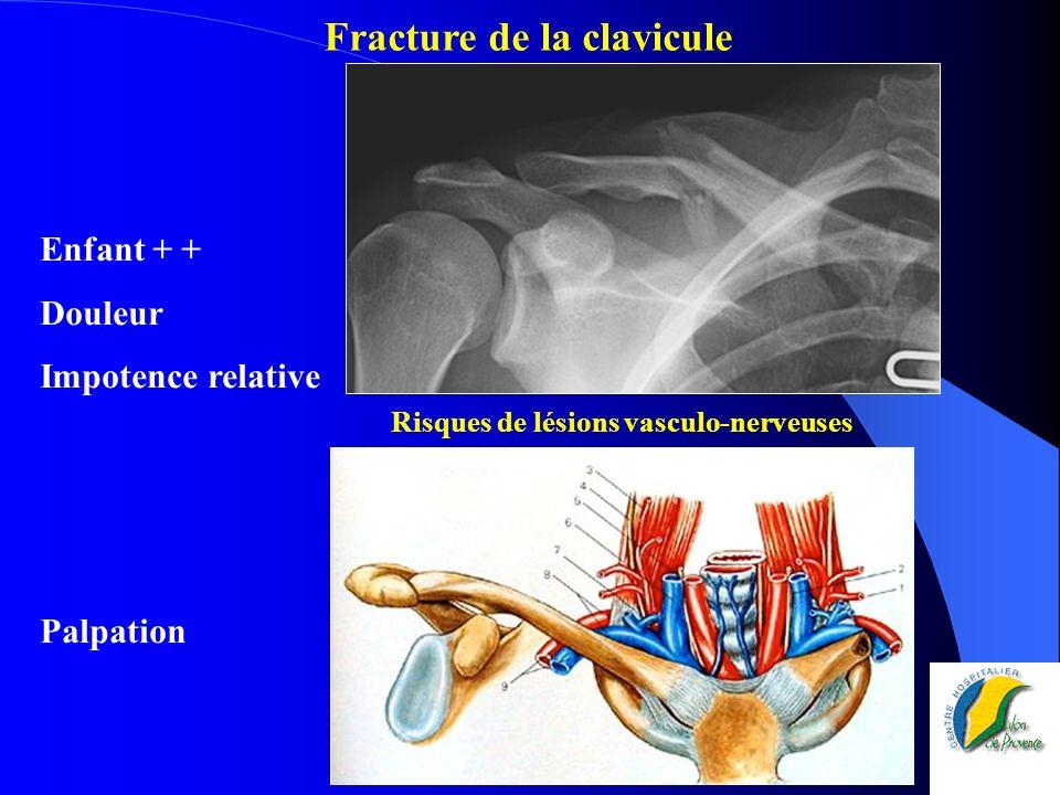 Risques de lésions vasculo-nerveuses Fracture de la clavicule Enfant + + Douleur Impotence relative Palpation