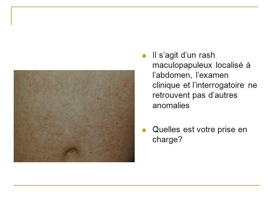 Il sagit dun rash maculopapuleux localisé à labdomen, lexamen clinique et linterrogatoire ne retrouvent pas dautres anomalies Quelles est votre prise