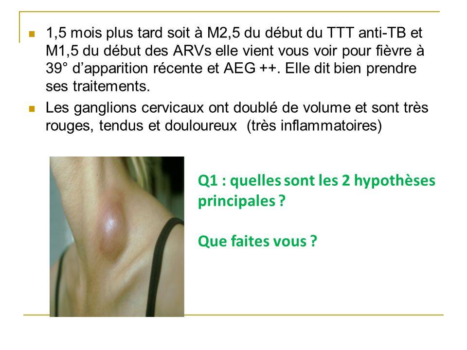 1,5 mois plus tard soit à M2,5 du début du TTT anti-TB et M1,5 du début des ARVs elle vient vous voir pour fièvre à 39° dapparition récente et AEG ++.