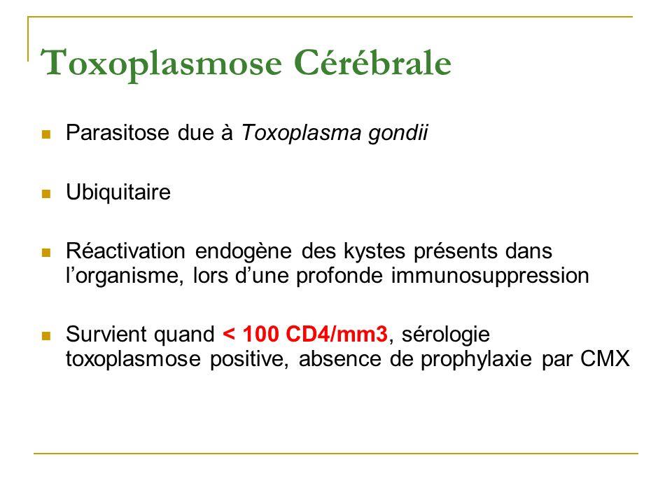 Toxoplasmose Cérébrale Parasitose due à Toxoplasma gondii Ubiquitaire Réactivation endogène des kystes présents dans lorganisme, lors dune profonde im
