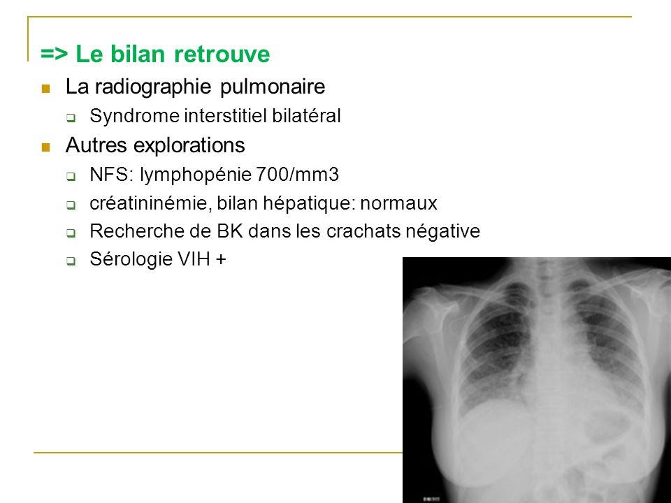 => Le bilan retrouve La radiographie pulmonaire Syndrome interstitiel bilatéral Autres explorations NFS: lymphopénie 700/mm3 créatininémie, bilan hépa