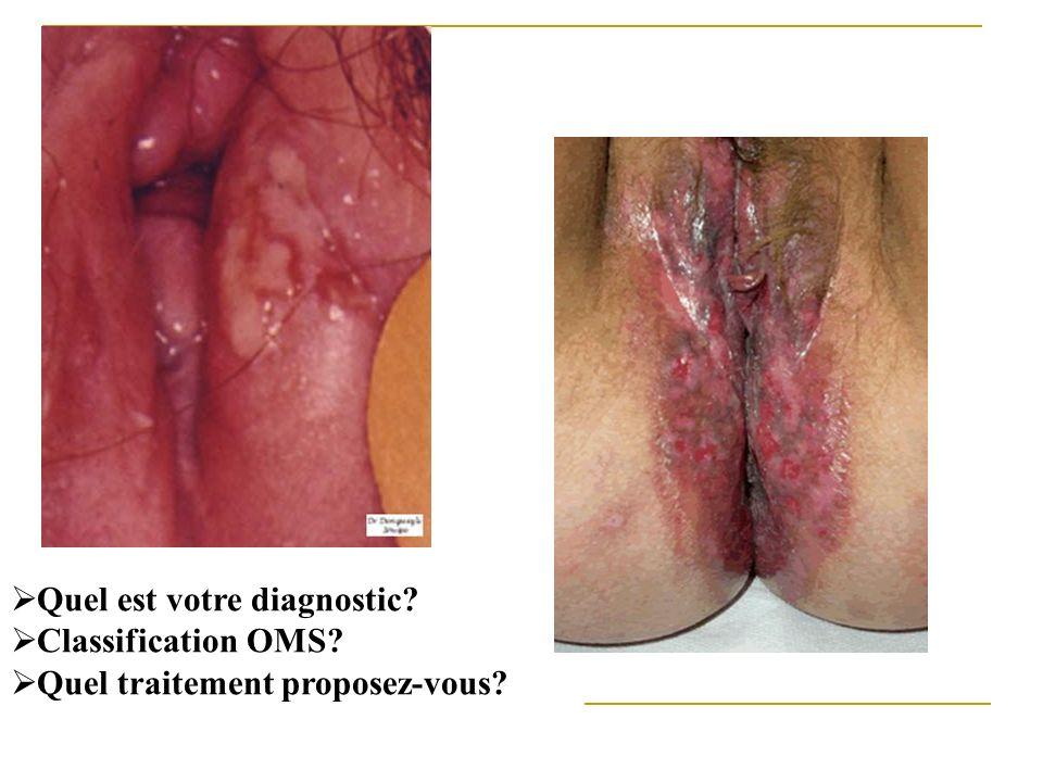 Quel est votre diagnostic? Classification OMS? Quel traitement proposez-vous?