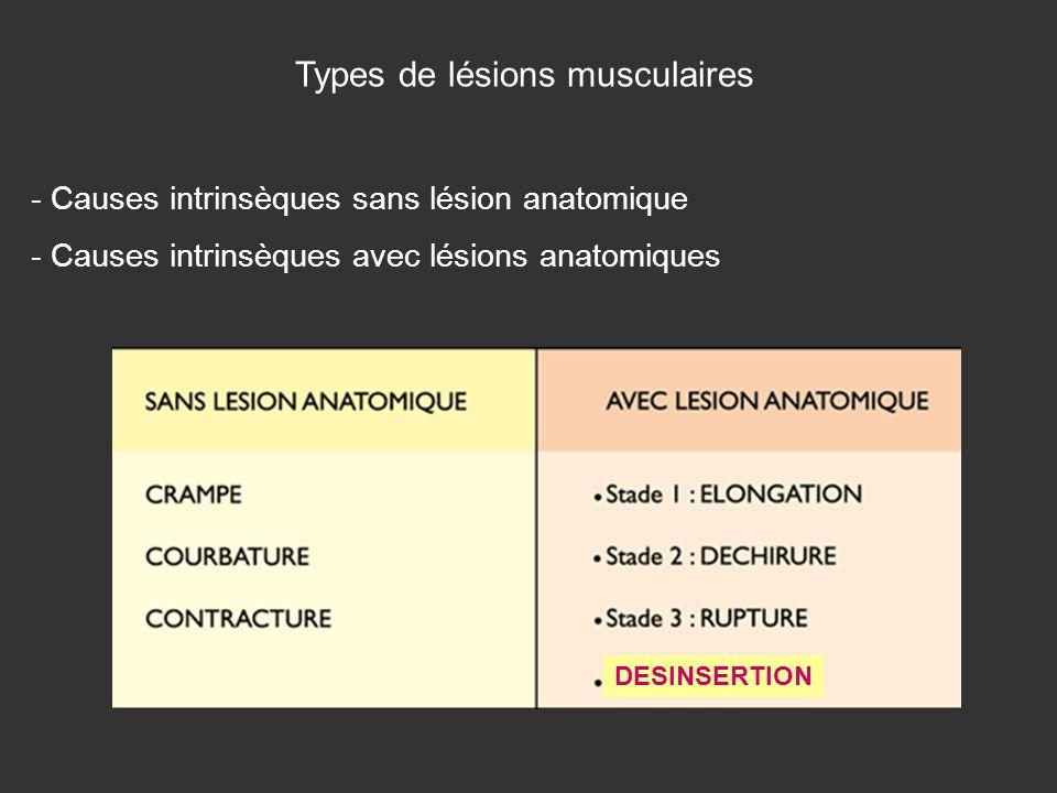 Types de lésions musculaires - Causes intrinsèques sans lésion anatomique - Causes intrinsèques avec lésions anatomiques DESINSERTION