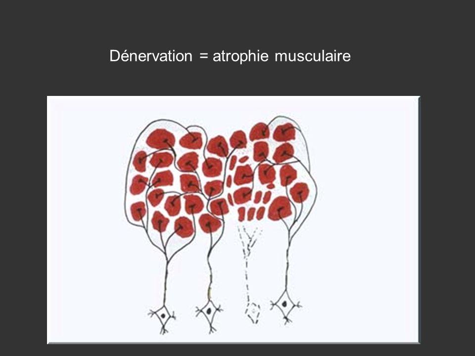 Dénervation = atrophie musculaire