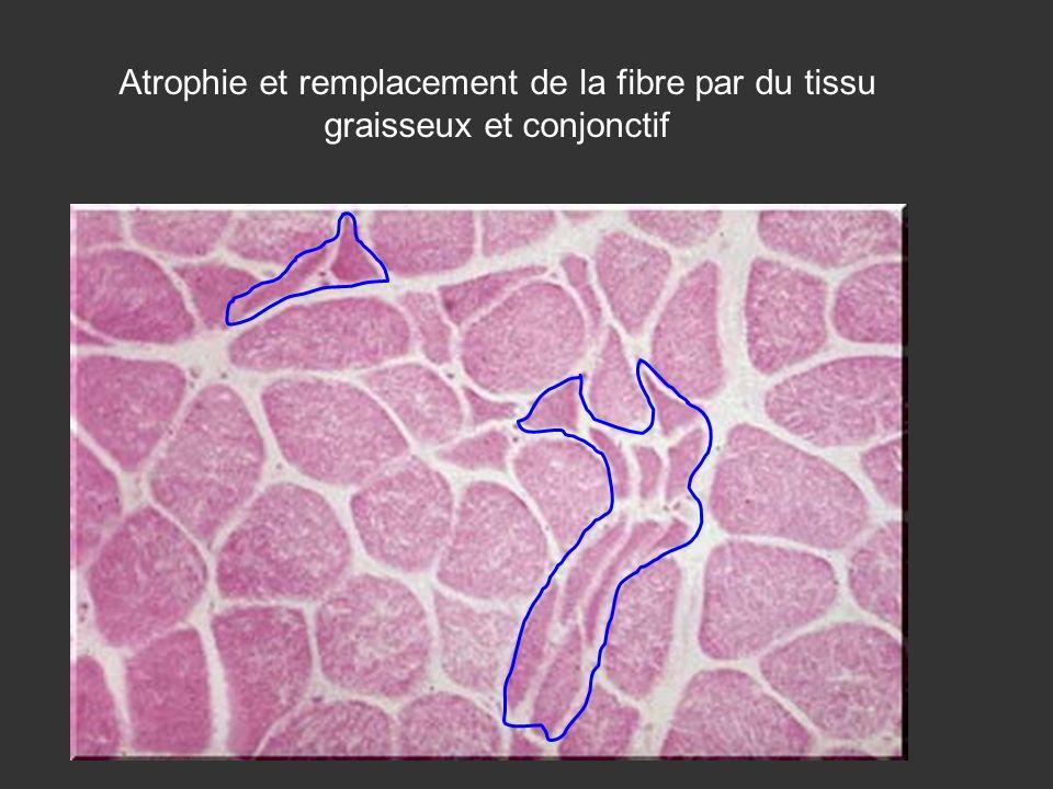 Atrophie et remplacement de la fibre par du tissu graisseux et conjonctif