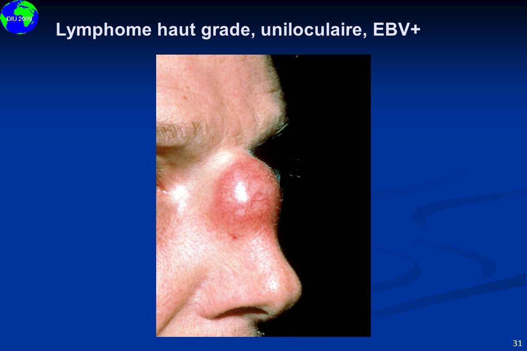DIU 2009 31 Lymphome haut grade, uniloculaire, EBV+