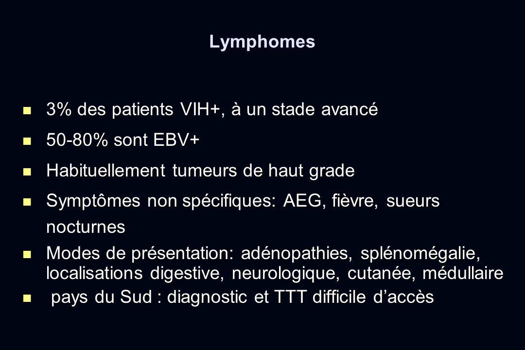 Lymphomes 3% des patients VIH+, à un stade avancé 3% des patients VIH+, à un stade avancé 50-80% sont EBV+ 50-80% sont EBV+ Habituellement tumeurs de
