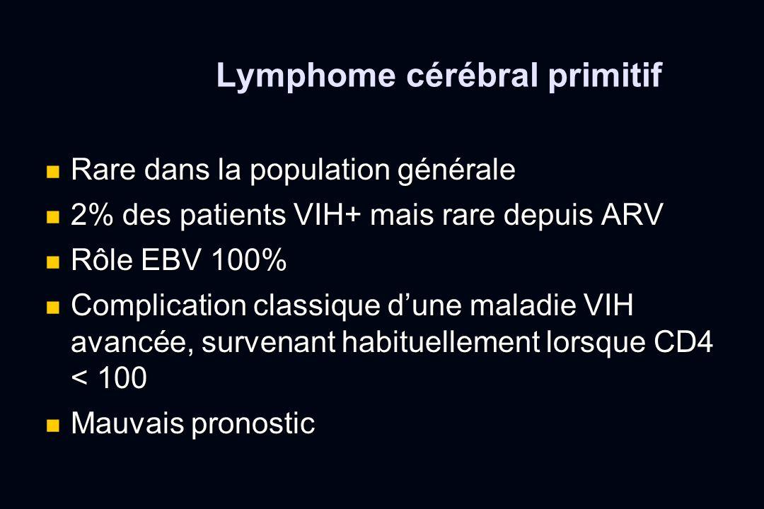 Lymphome cérébral primitif Rare dans la population générale Rare dans la population générale 2% des patients VIH+ mais rare depuis ARV 2% des patients