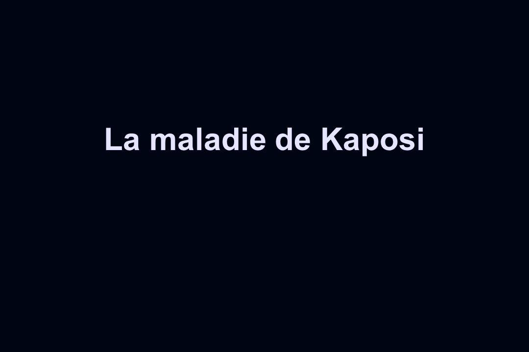 La maladie de Kaposi