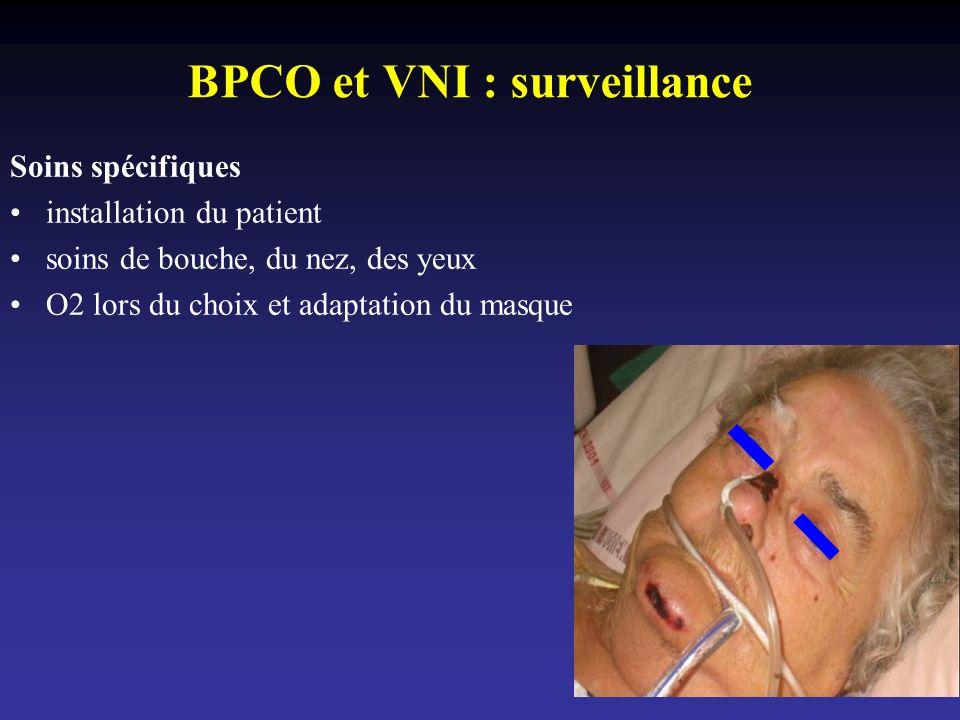 BPCO et VNI : surveillance Soins spécifiques installation du patient soins de bouche, du nez, des yeux O2 lors du choix et adaptation du masque