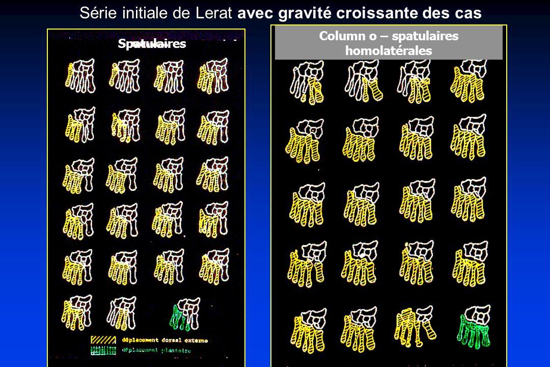 Spatulaires Column o – spatulaires homolatérales Série initiale de Lerat Série initiale de Lerat avec gravité croissante des cas