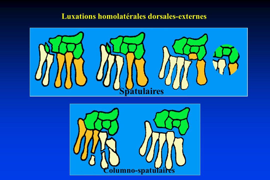 Luxations homolatérales dorsales-externes Spatulaires Columno-spatulaires