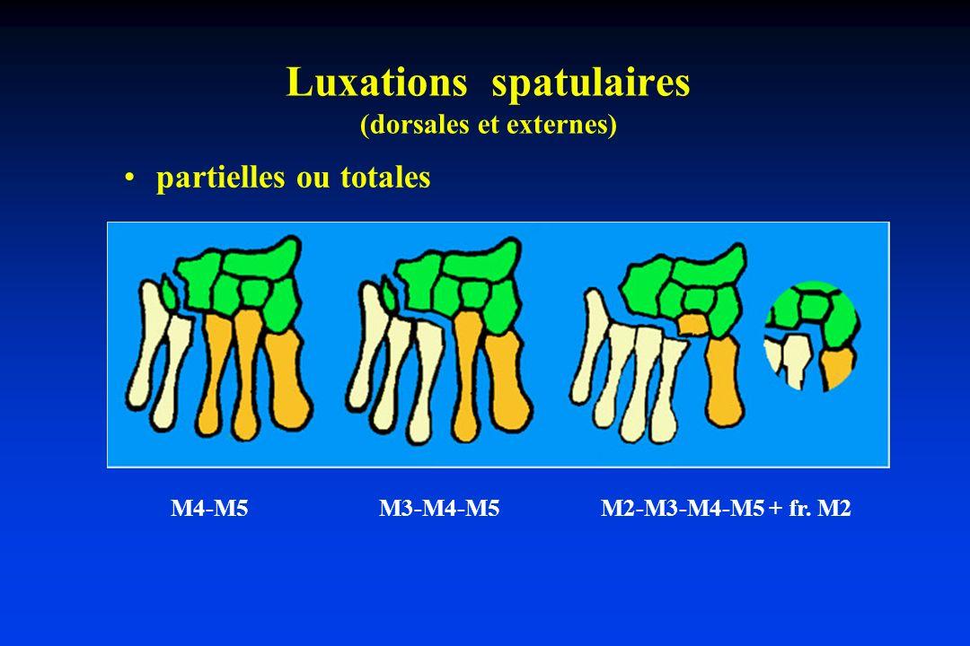 Luxations spatulaires (dorsales et externes) partielles ou totales M4-M5 M3-M4-M5 M2-M3-M4-M5 + fr. M2