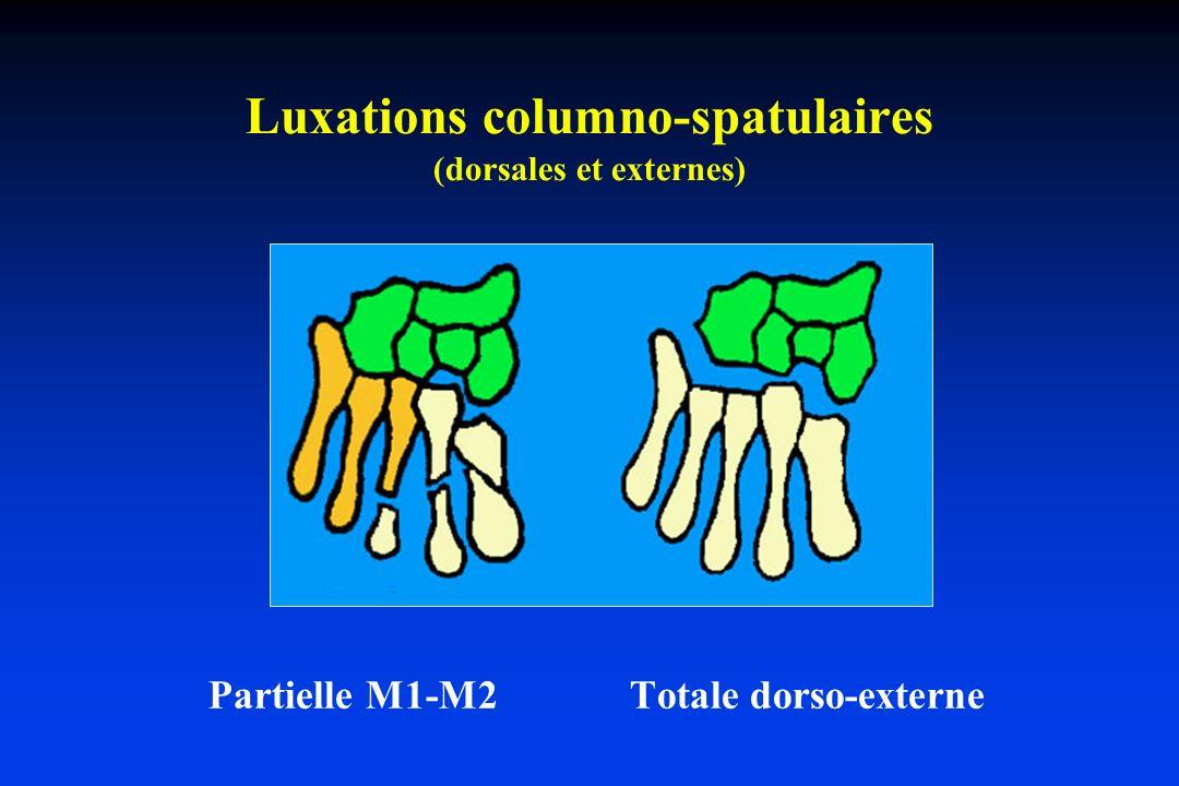 Luxations columno-spatulaires (dorsales et externes) Partielle M1-M2 Totale dorso-externe