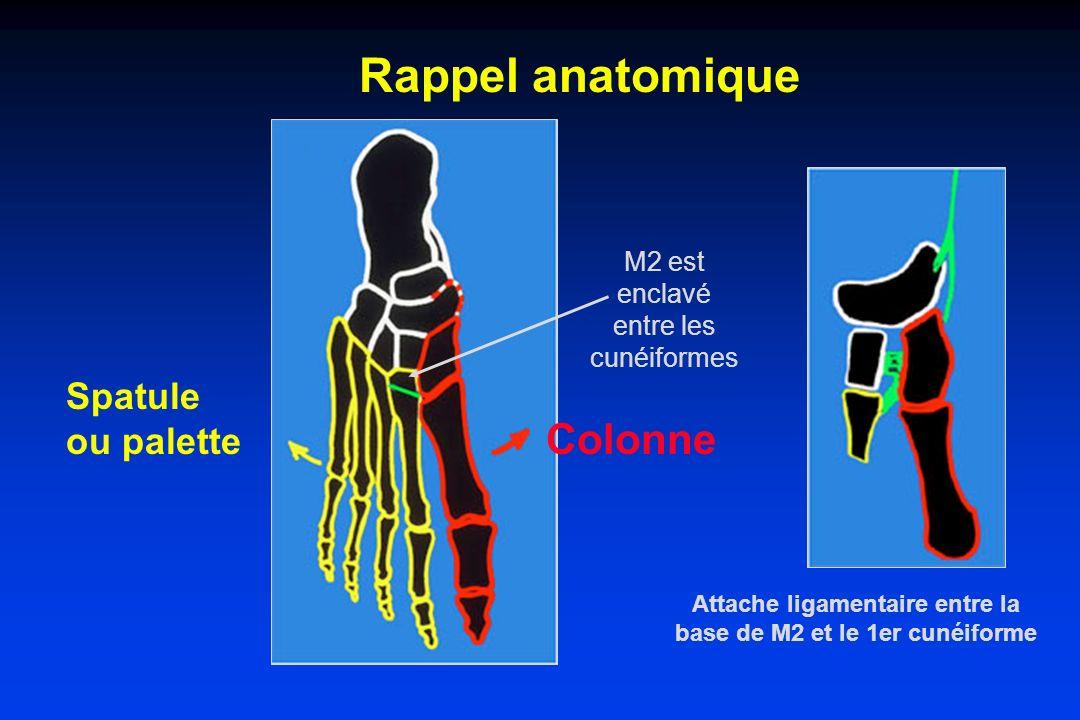 Rappel anatomique Spatule ou palette Colonne Attache ligamentaire entre la base de M2 et le 1er cunéiforme M2 est enclavé entre les cunéiformes