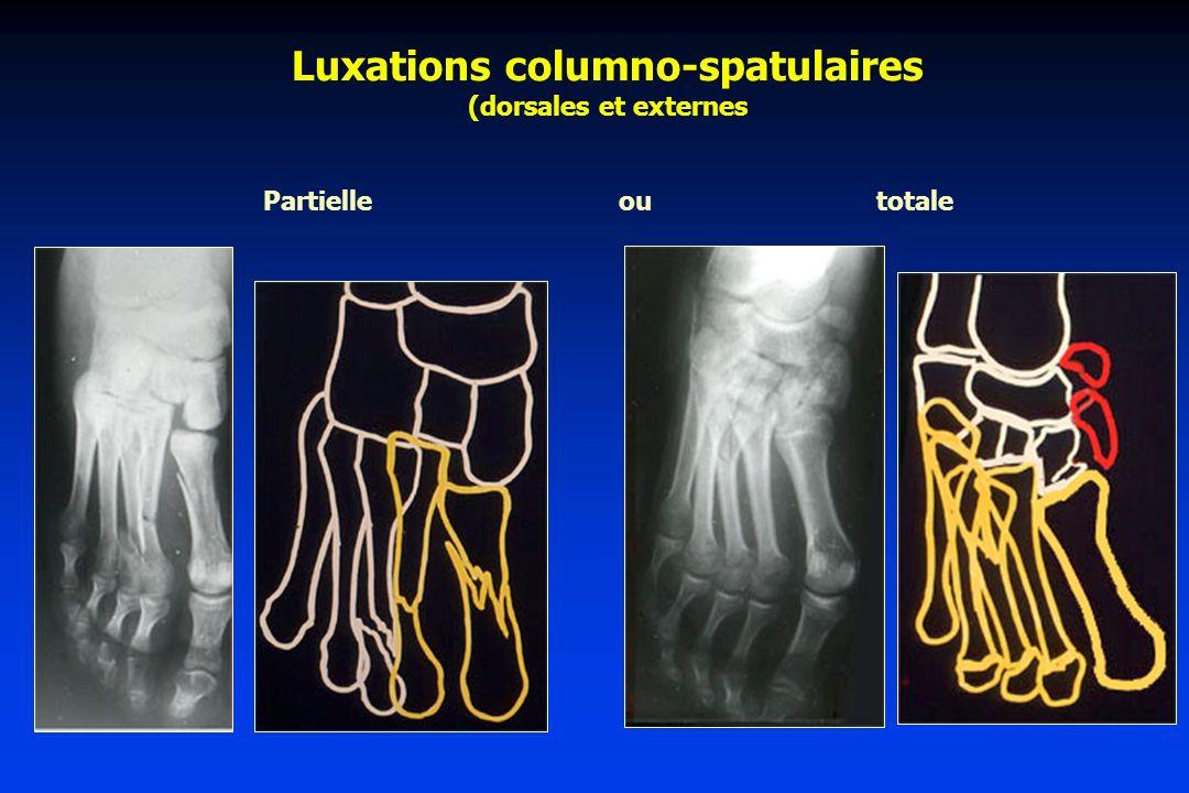 Luxations columno-spatulaires (dorsales et externes Partielle ou totale