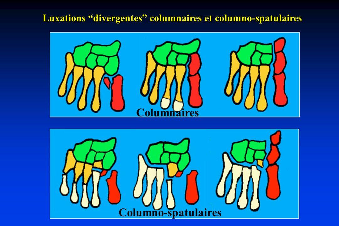 Luxations divergentes columnaires et columno-spatulaires Columno-spatulaires Columnaires