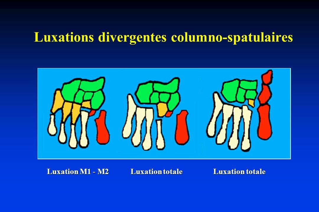Luxations divergentes columno-spatulaires Luxation M1 - M2 Luxation totale Luxation totale