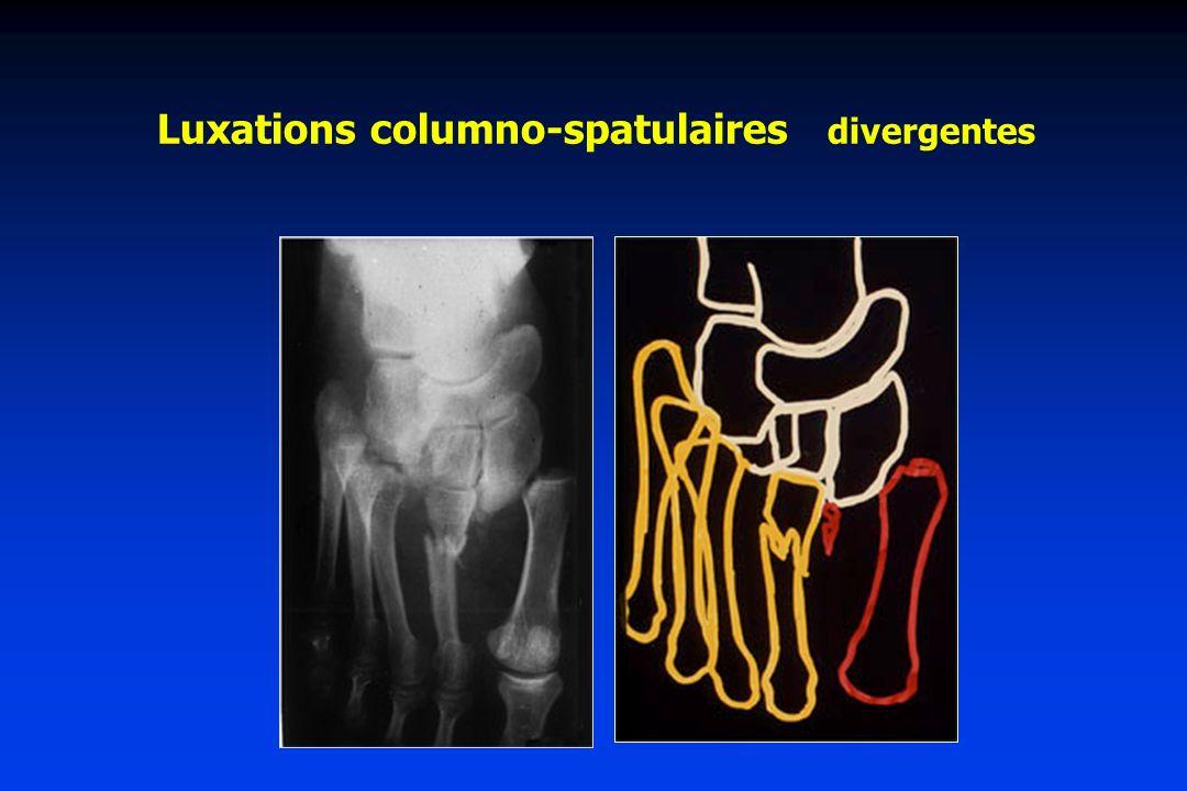 Luxations columno-spatulaires divergentes