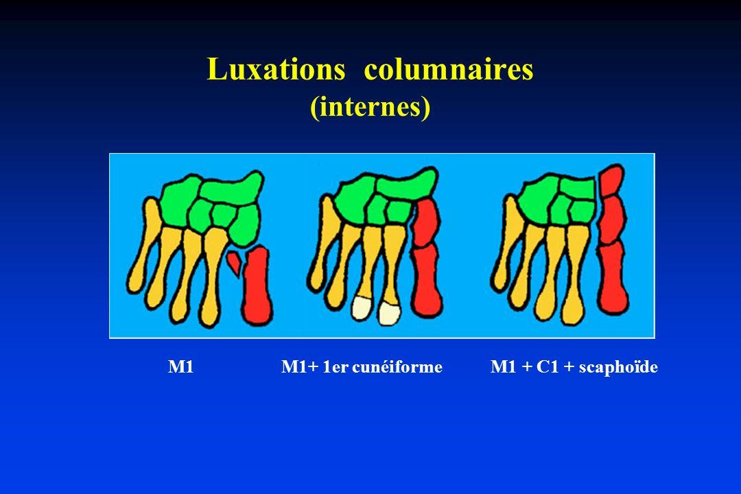 Luxations columnaires (internes) M1 M1+ 1er cunéiforme M1 + C1 + scaphoïde