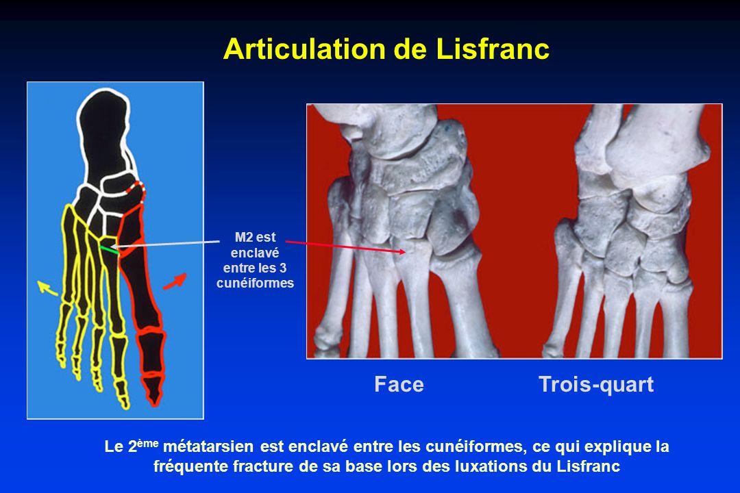 La mobilité de larticulation est peu importante * C 1 – M 1 : 20° flexion dorsale * Cuboïde – M 5 : 10° à 20° * M 2 – M 3 – M 4 sont presques immobiles Les bases des métatarsiens sont triangulaires à sommet plantaire ce qui favorise les luxations dorsales