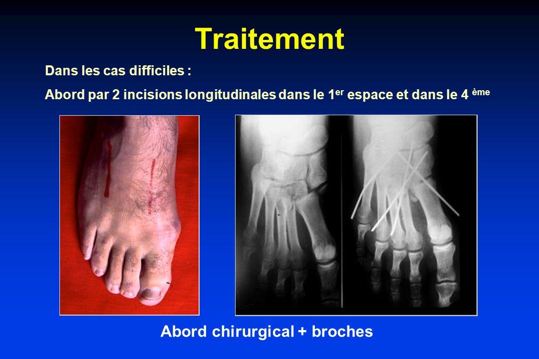 Traitement Abord chirurgical + broches Dans les cas difficiles : Abord par 2 incisions longitudinales dans le 1 er espace et dans le 4 ème