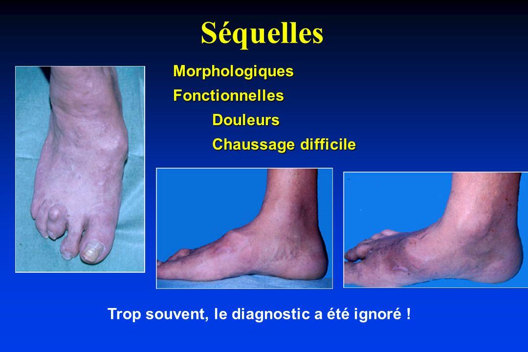 Séquelles Trop souvent, le diagnostic a été ignoré ! MorphologiquesFonctionnellesDouleurs Chaussage difficile