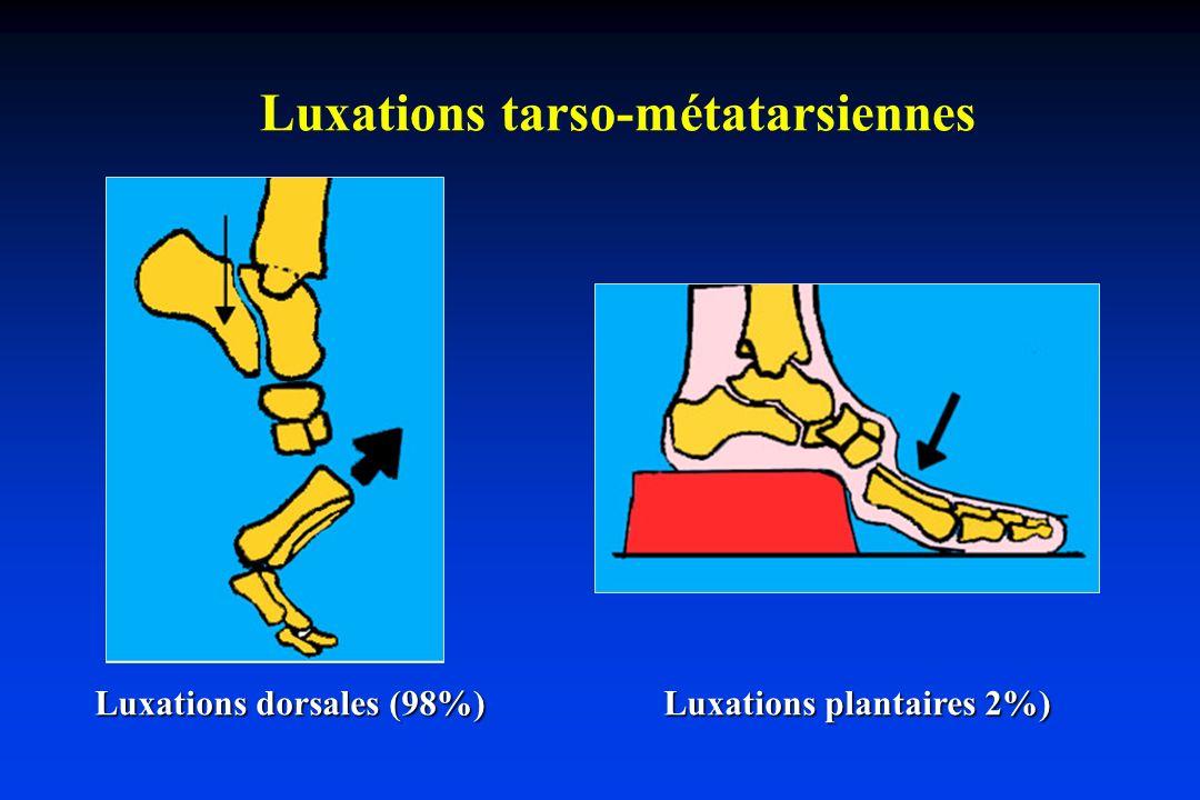 Traumatismes par choc vertical (écrasement) Luxations plantaires (2%)