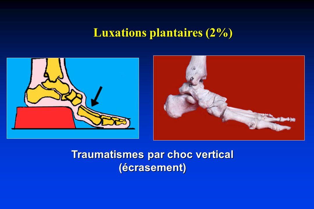 Luxations dorsales (98%) Traumatismes en hyperflexion Classiquemet, fracture du cavalier (pied dans étrier) Trauma du travail (avant-pied coincé dans une échelle Trauma du traffic (pied sur la pédale de frein) Chute sur la pointe du pied (compression axiale)