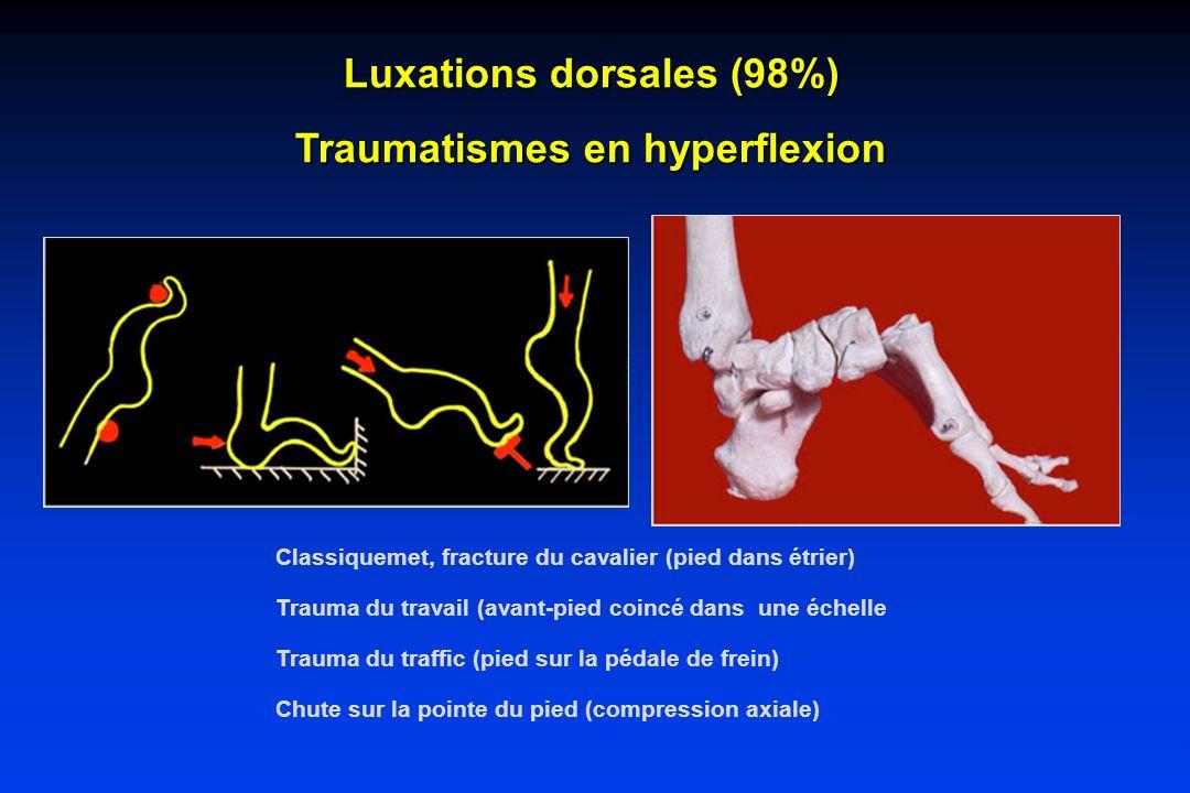 Luxations dorsales (98%) Traumatismes en hyperflexion Classiquemet, fracture du cavalier (pied dans étrier) Trauma du travail (avant-pied coincé dans